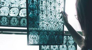 10 Signos de la enfermedad de Alzheimer
